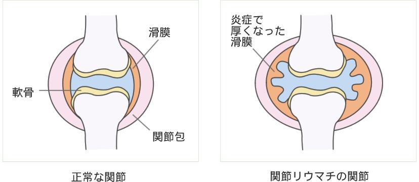 正常な関節 関節リウマチの関節